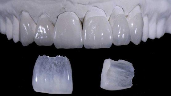 Đắp răng sứ – Giải pháp phục hình cho răng đẹp hoàn hảo, an toàn