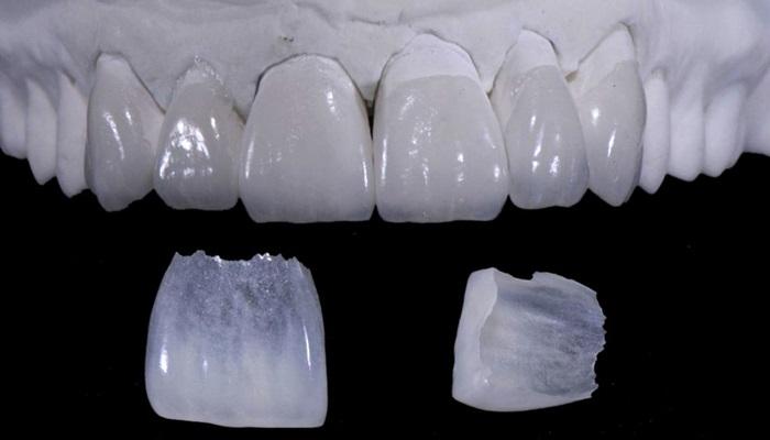 Đắp răng sứ - Giải pháp phục hình cho răng đẹp hoàn hảo, an toàn 1