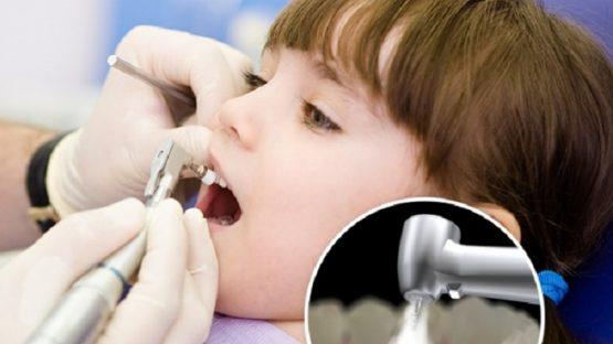 Địa chỉ hàn răng cho bé an toàn, chất lượng
