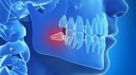 Có nên trồng răng số 8 sau khi đã nhổ răng rồi hay không?