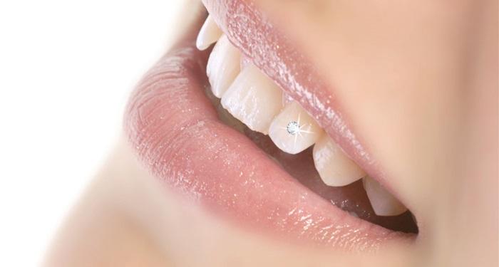 Làm răng kim cương bằng công nghệ tiên tiến E.Las 2