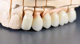 Làm răng sứ thẩm mỹ – Giải pháp phục hình hoàn hảo cho răng