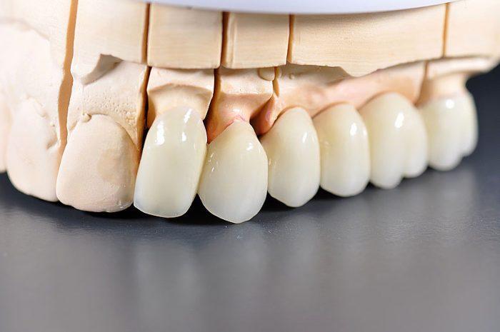 Làm răng sứ thẩm mỹ - Giải pháp phục hình hoàn hảo cho răng 2