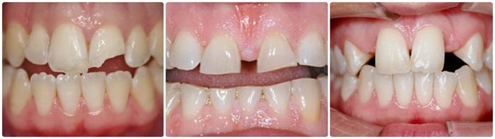 Làm răng sứ thẩm mỹ - Giải pháp phục hình hoàn hảo cho răng 1