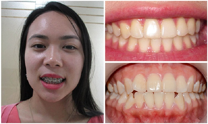 Kết quả niềng răng - Răng mọc siêu vẹo - Nha Khoa KIM