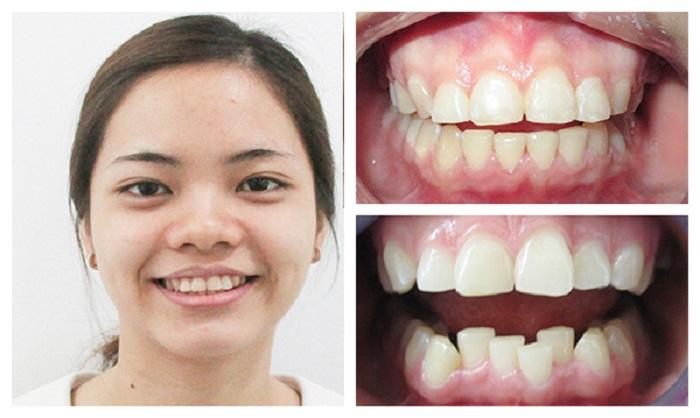 Kết quả niềng răng từ răng mọc lệch lạc - Nha Khoa KIM
