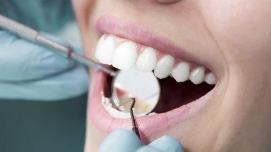 Cách chữa răng hô hiệu quả nhất đang được nhiều người lựa chọn