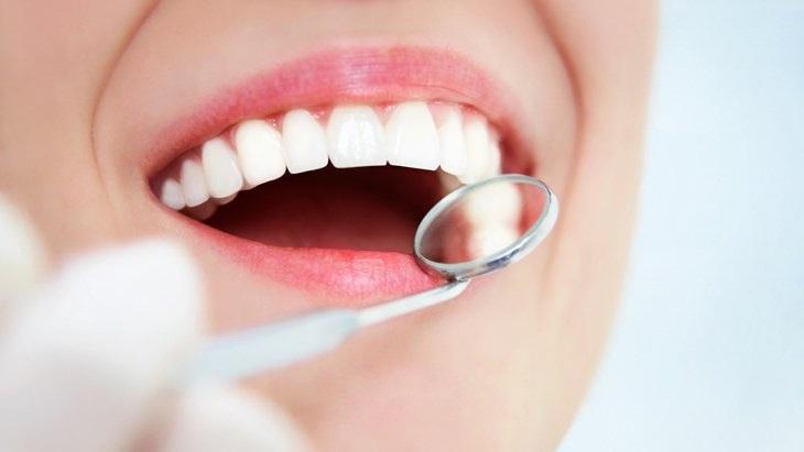 Tẩy trắng răng WhiteMax hiệu quả chỉ sau 1 lần, trắng đẹp lâu dài