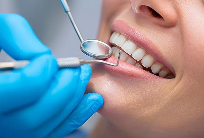Có nên tẩy trắng răng không? Ai không nên thực hiện? 2