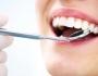 Tẩy trắng răng giá bao nhiêu tiền - Bảng giá cập nhật mới & chuẩn nhất
