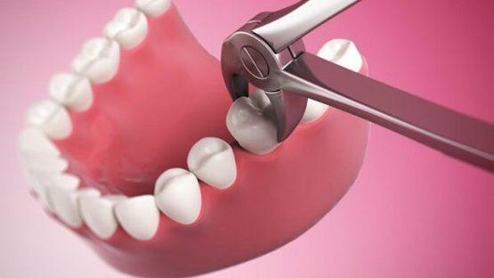 Nhổ răng hàm dưới – Trường hợp nào phải nhổ bỏ, có nguy hiểm không?