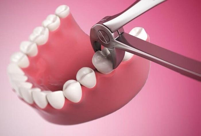 Nhổ răng hàm dưới – Trường hợp nào phải nhổ bỏ, có nguy hiểm không? 1