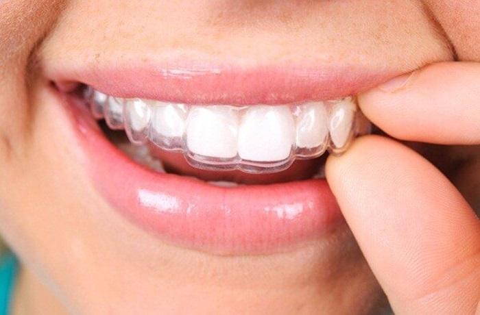 Niềng răng 1 hàm giá bao nhiêu? 3