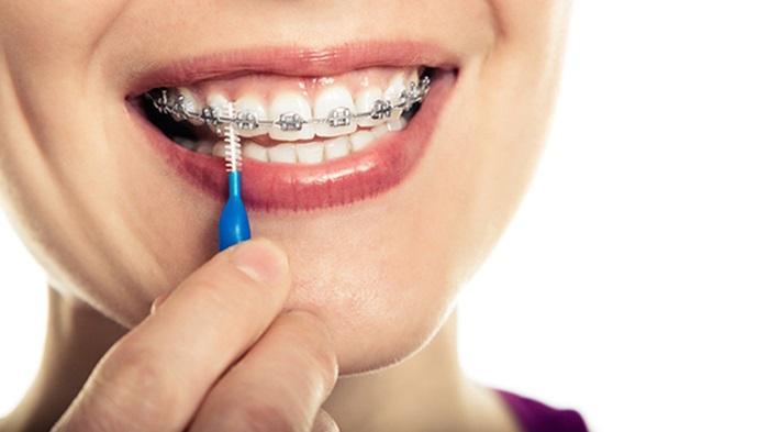 Niềng răng 1 hàm giá bao nhiêu? 2
