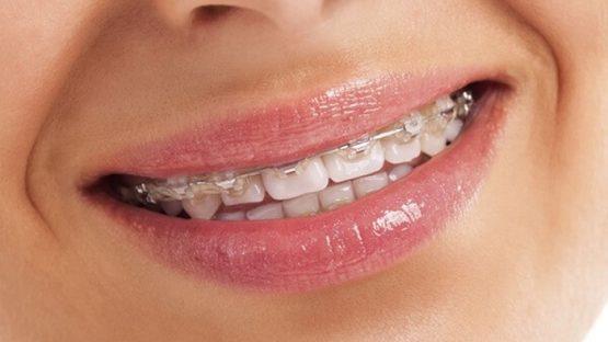 Niềng răng 1 hàm giá bao nhiêu? Liệu niềng răng 1 hàm có hiệu quả?