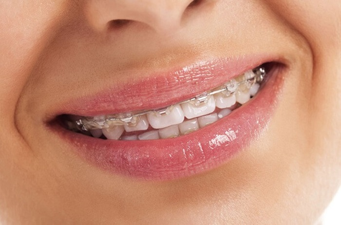 Niềng răng không nhổ răng có được không? 1