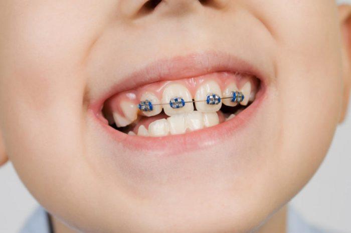 Các loại mắc cài niềng răng hiện nay – Bạn đã biết chưa? 5