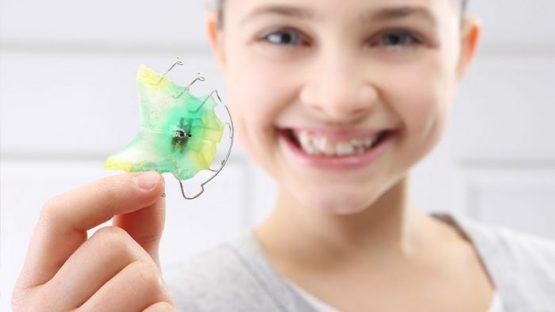 Niềng răng cho trẻ em giá bao nhiêu? Phương pháp nào hiệu quả, tiết kiệm?