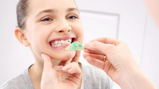 Niềng răng cho trẻ ở đâu TPHCM – Điều cha mẹ cần lưu ý khi chọn