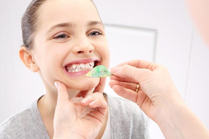 Niềng răng hô nhẹ mất bao lâu thì răng hết hô, đều đẹp? 2