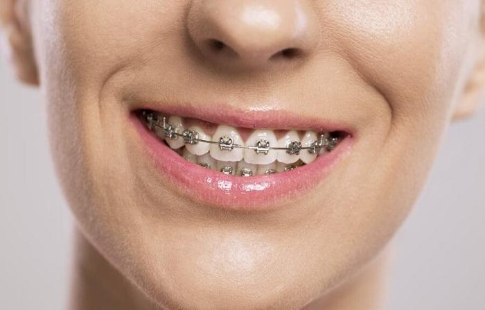 Niềng răng khểnh công nghệ 3D - Nhanh chóng, đẹp toàn diện 1
