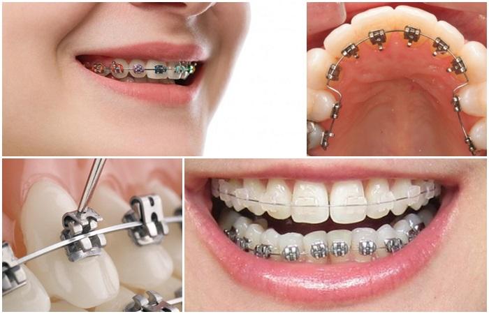 Niềng răng giá rẻ là gì? Niềng răng giá rẻ nhất là bao nhiêu? 2