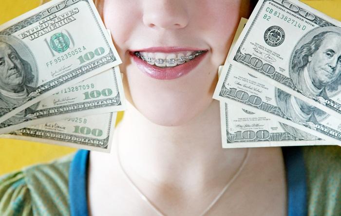 Niềng răng giá rẻ là gì? Niềng răng giá rẻ nhất là bao nhiêu? 1