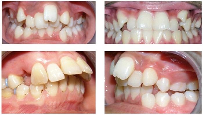 Niềng răng hô bằng kỹ thuật 3D hiệu quả theo đúng liệu trình 1