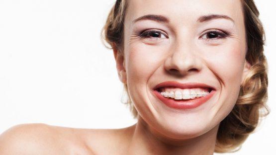 Niềng răng hô mất bao lâu thì có được hàm răng đều đẹp hết hô?