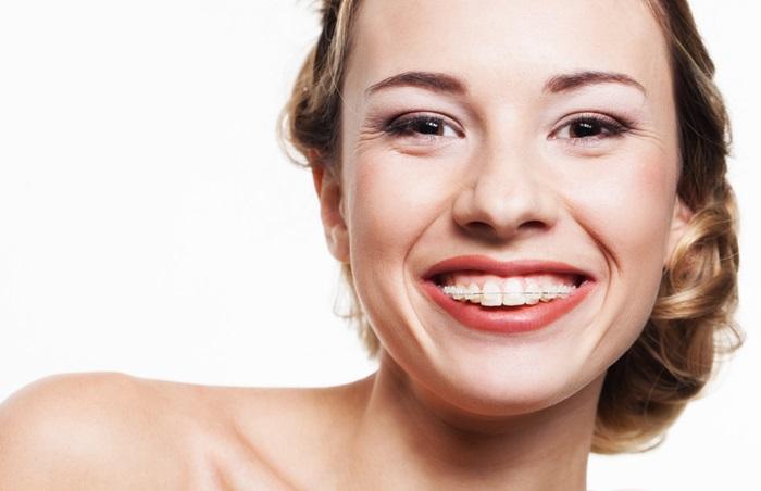 Niềng răng mắc cài sứ - Giải pháp tối ưu cho hàm hô, móm, vẩu, lệch lạc 1