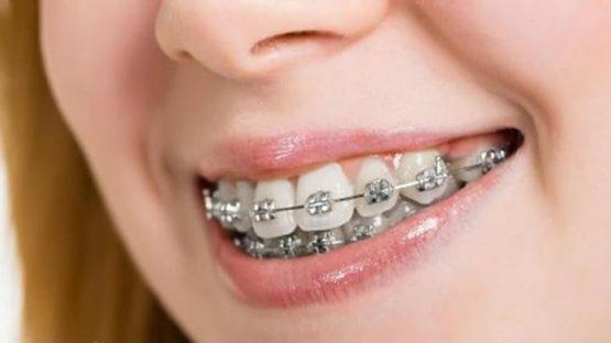 Có nên niềng răng hô nhẹ? Giá niềng răng hô nhẹ bao nhiêu tiền?