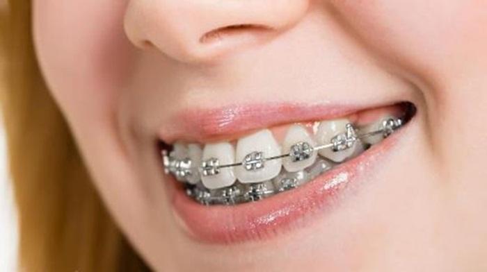Niềng răng hô bằng kỹ thuật 3D hiệu quả theo đúng liệu trình 2