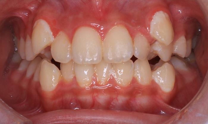 Tại sao phải nhổ răng khểnh càng sớm càng tốt? 3