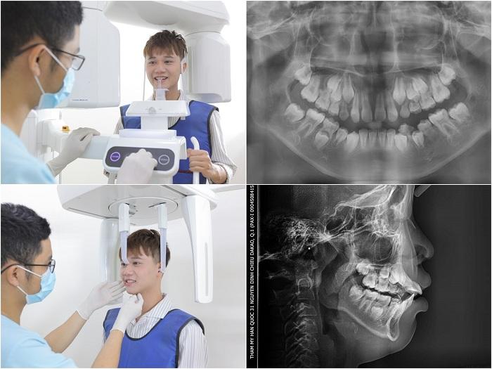 Niềng răng ở đâu an toàn và uy tín nhất hiện nay? 3