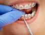 Các loại mắc cài niềng răng hiện nay – Bạn đã biết chưa?