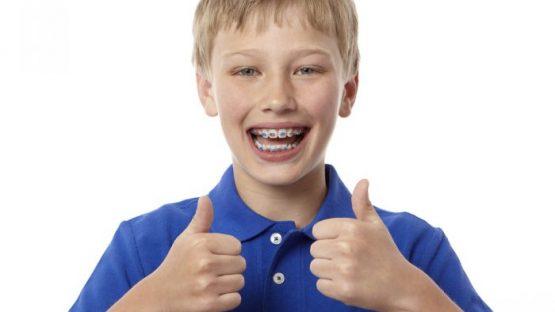 Niềng răng cho trẻ em giá bao nhiêu?