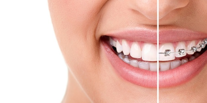Nên niềng răng ở đâu tốt TPHCM 1