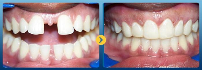 Hiệu quả niềng răng - 4