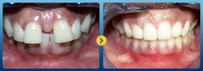 Hiệu quả niềng răng - 1