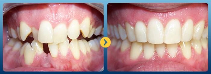 Hiệu quả niềng răng - 3