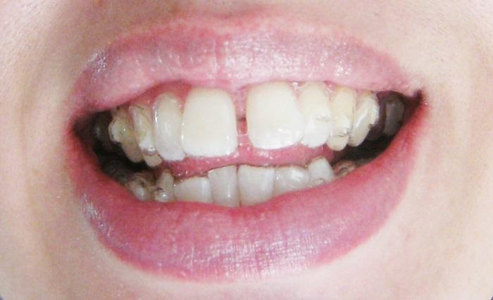 Làm sao dự tính được: Niềng răng thưa giá bao nhiêu tiền khi điều trị? 3