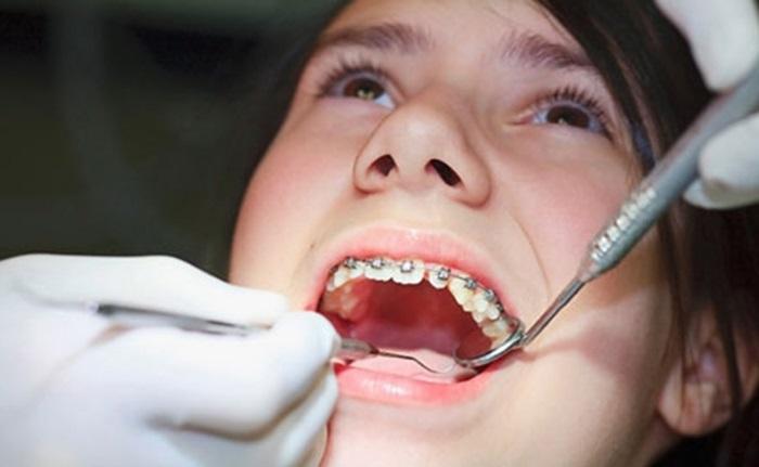 Làm sao dự tính được: Niềng răng thưa giá bao nhiêu tiền khi điều trị? 2