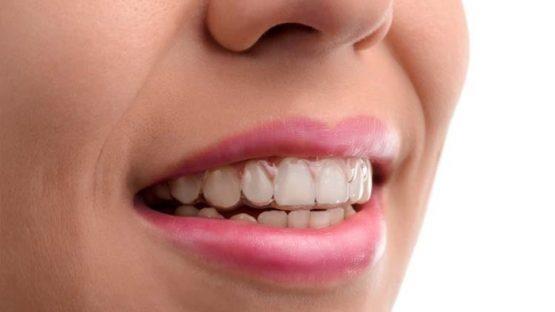 Niềng răng Invisalign bao nhiêu tiền? Mức giá niềng răng CHUẨN?