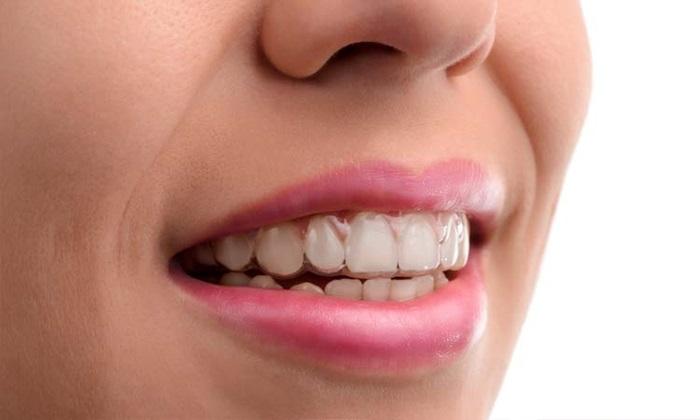 Nên chọn niềng răng loại nào tốt nhất hiện nay? 5