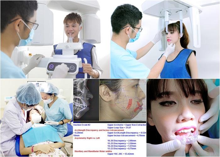 Niềng răng eCligner - Chỉnh nha vô hình, thẩm mỹ hiệu quả 6