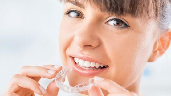 Niềng răng trong suốt mất bao lâu thì kết thúc việc điều trị?