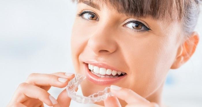 Nên chọn niềng răng loại nào tốt nhất hiện nay? 3