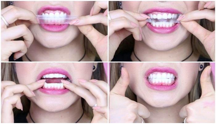 [TỔNG HỢP] Các phương pháp làm trắng răng hiệu quả nhất! 11
