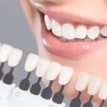 Quy trình tẩy trắng răng – Điều bạn nên nắm rõ khi thực hiện