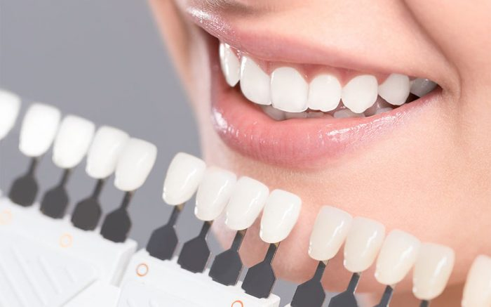 Quy trình tẩy trắng răng tại phòng khám – Điều bạn nên nắm rõ khi thực hiện 1